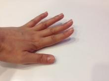 浮き指とは、その名の通り指が浮いている状態