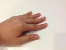 浮き指の人の圧力分布