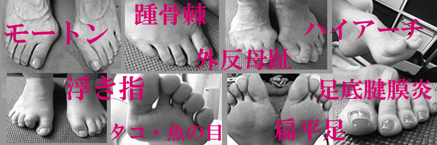 浮き指、外反母趾、扁平足、開帳足、モートン、魚の目、踵骨棘、外脛骨症