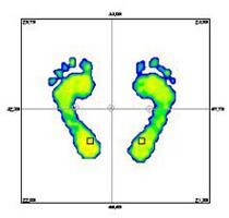 足裏のバランス測定結果 【健康的な足バランス】