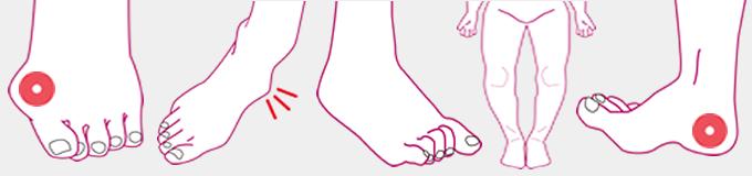 アーチの低下 足の痛み 外反母趾 扁平足 開帳足 タコ 魚の目 浮き指 足の悩み 足トラブル オーダーインソールで解決