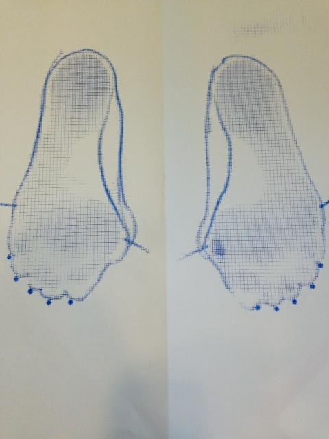 外反母趾フットプリント