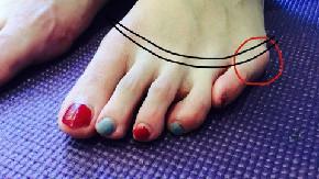 【内反小趾で痛い足を…インソールで対策する場合】