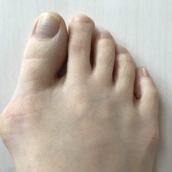 外反母趾は、クイスクイスのインソールで治りますか?