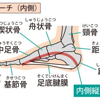 「足の骨の出っ張りは何?」舟状骨が関係?原因を解説します!