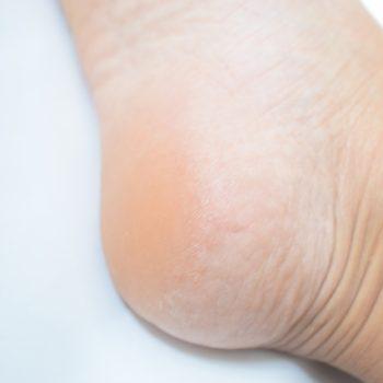 かかとのガサガサは、足指が使えていないことが原因かも!?