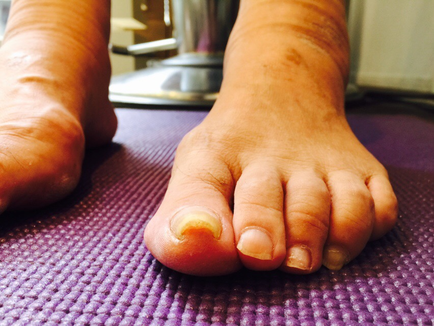 image-爪のトラブルと浮き指 | オーダーインソールのクイスクイス