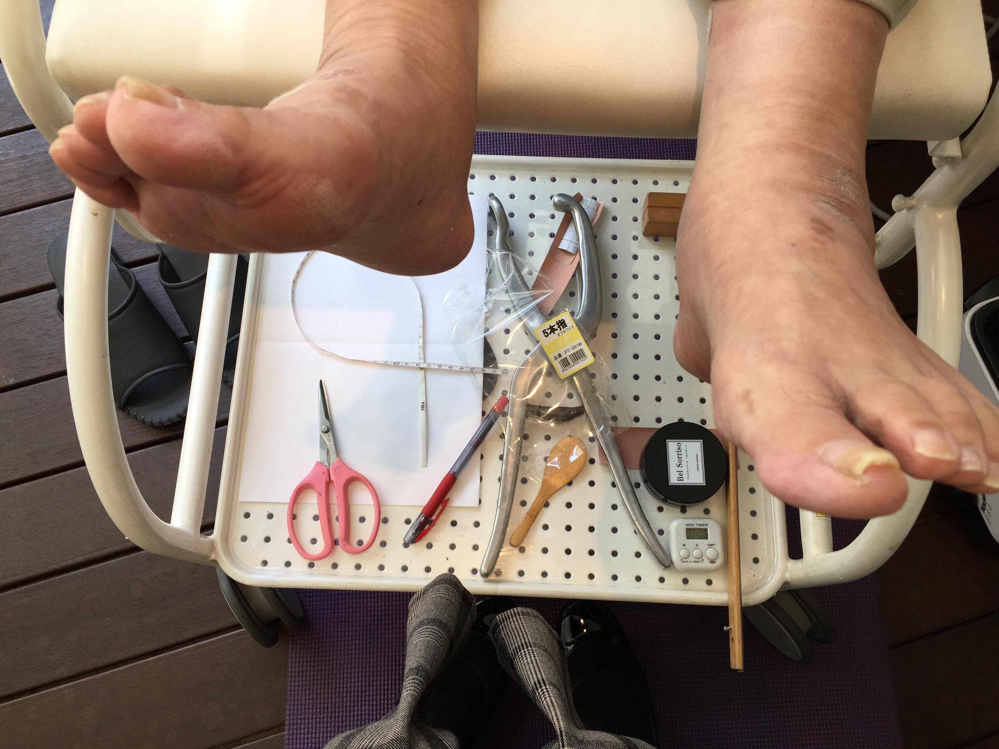 image-【脚の長さが左右で違う時の対処法】 | オーダーインソールのクイスクイス