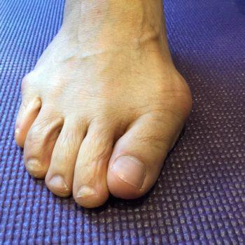 足の痛み:外反母趾の原因と効果的な対策方法