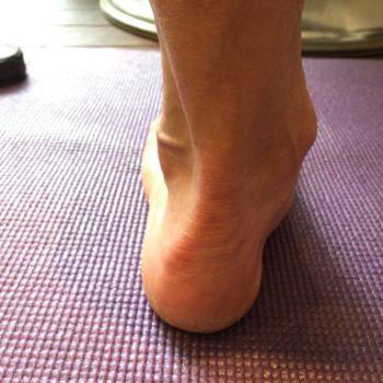 踵の骨にできる棘の効果的な対策方法とは?