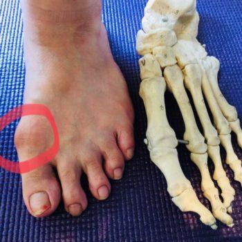 扁平した足裏の原因は親指?