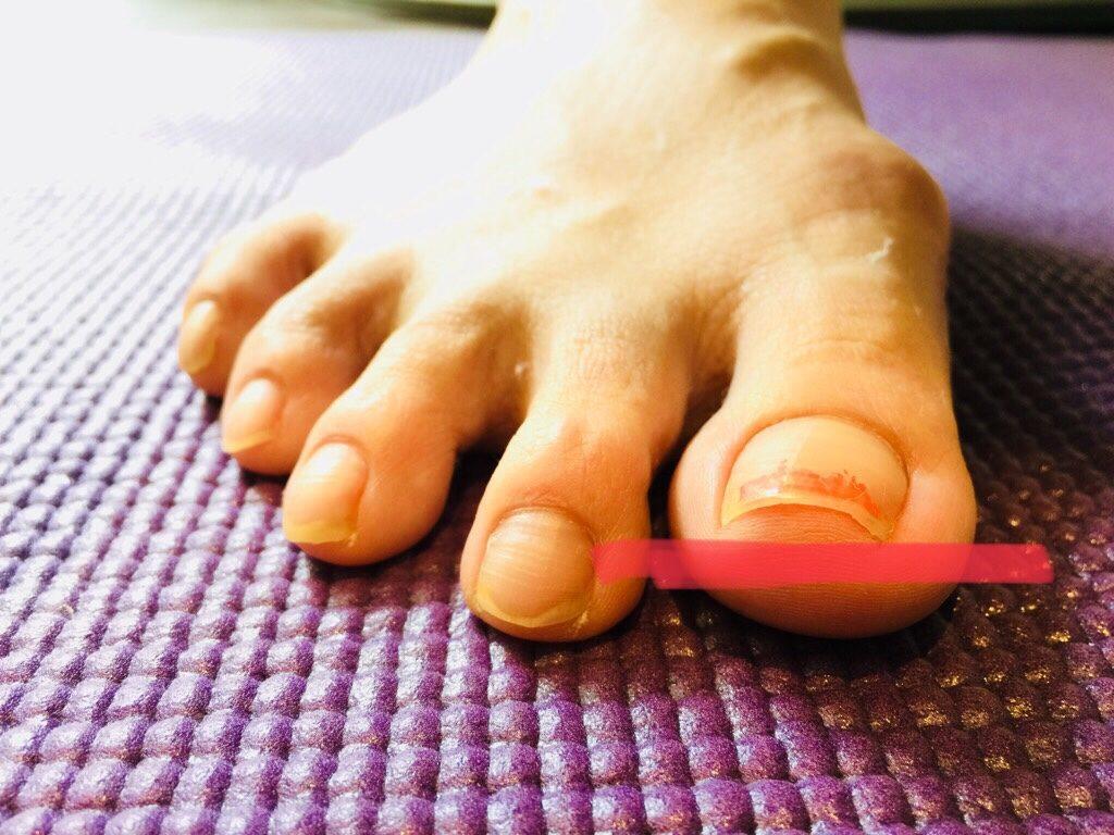 巻き爪、外反拇趾対策インソール