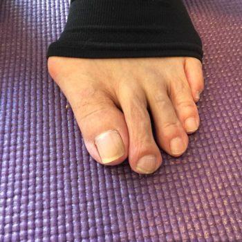 足の指が重なる外反母趾への対策